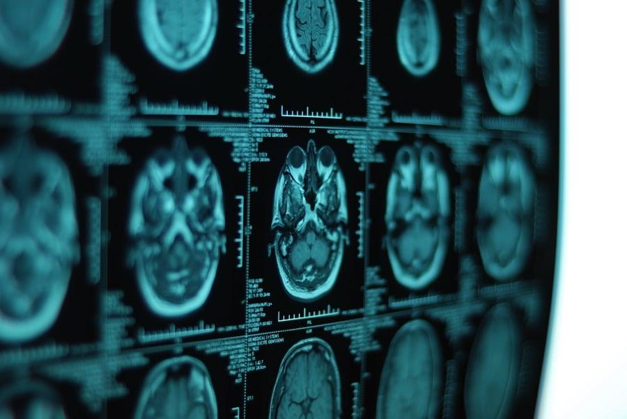 Human brain scan