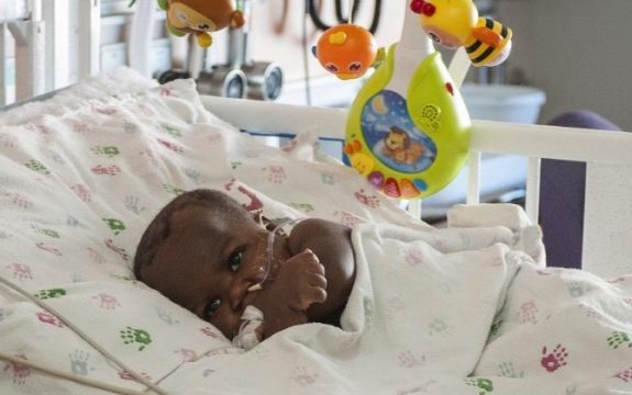 baby Dominique undergoes surgery to remove parasitic twin