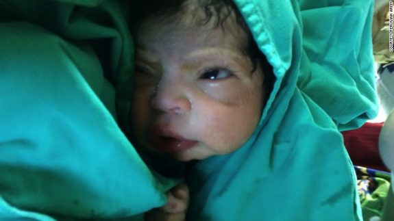 Baby born helicopter peruvian army
