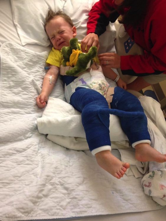 toddler colton after trampoline accident