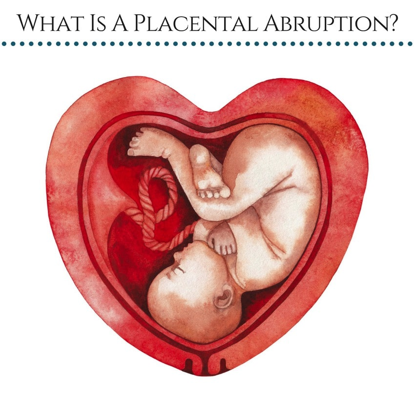 What Is A Placental Abruption