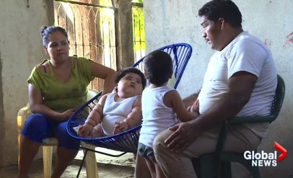 62 pound mexican baby Luis Manuel Gonzales with his family