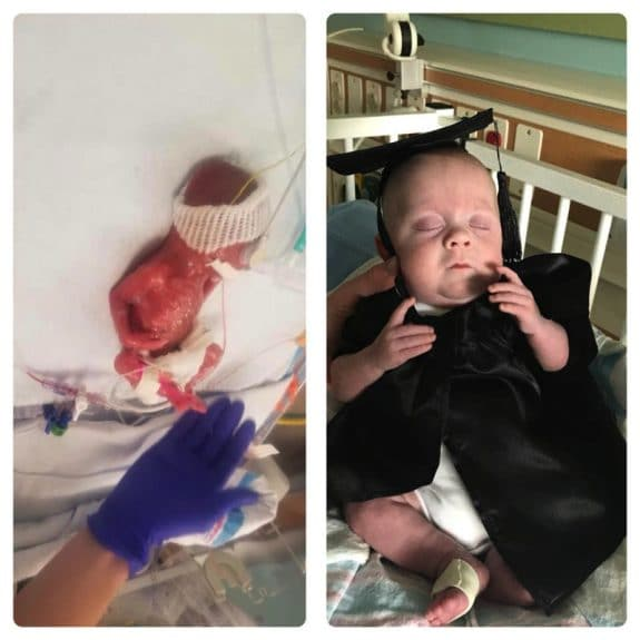 13.9oz 22 week baby Cullen Potter