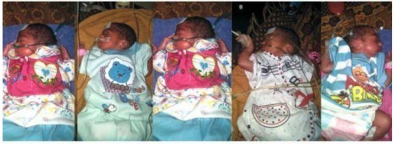 Pakistani Mom Welcomes Sextuplets