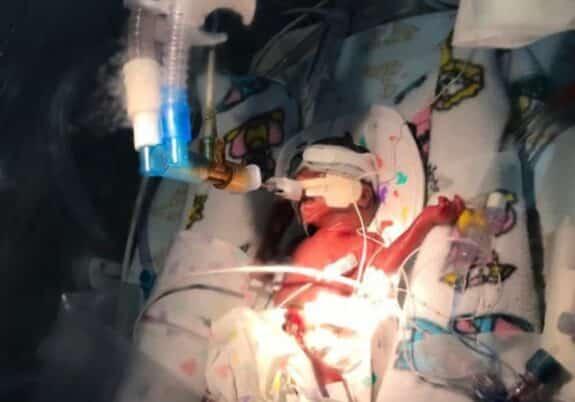 Baby Latifa born at 23 weeks 250gm