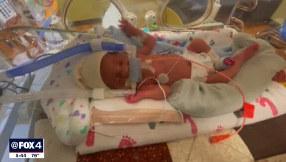 Dallas Mom Gives Birth To Quintuplets