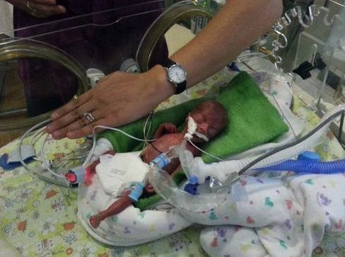 23 week baby Meghan Hope Pacyna at birth