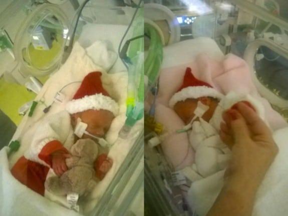 32 week Bennett twins