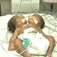 Twins born with a Single Body