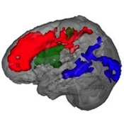Brain Scans on Toddlers Reveal Critical Language Development Window