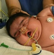 Mother Delivers 13.47 Pound Baby Girl, Naturally!