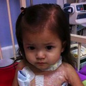 A Worldwide Plea For Bone Marrow Goes Out To Help A Toddler Combat Rare Disorders