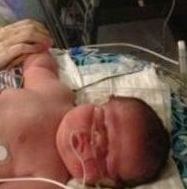 "14-Pound ""J.J."" from Utah may be Biggest U.S. Baby for 2013"