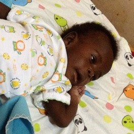 Baby Boy Born with Eight Limbs Progressing Well after Successful Surgery