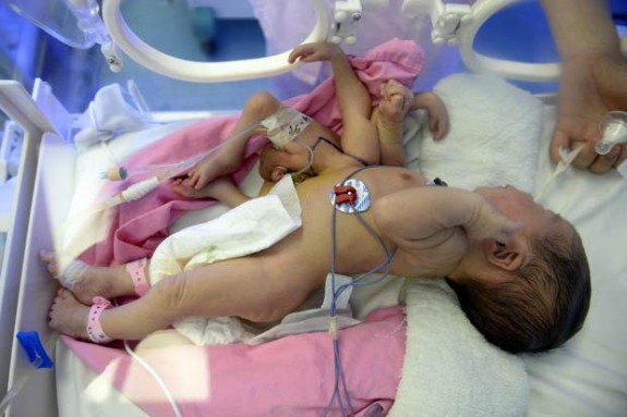 Baby born with 4 legs and 4 hands