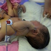 Doctors Operate on Baby Born with 4 Legs and 4 Hands