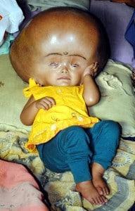 Baby roona hydrocephalus