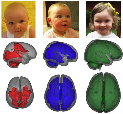 MRI images, taken while children were asleep, showed that infants who were exclusively breastfed for at least three months. Image VIA Brown University