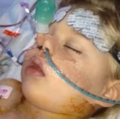 U.K. Toddler Undergoes Rare Operation To Turn Heart Around; Chest Left Open For Five Days