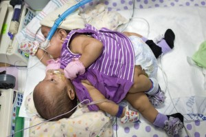 Conjoined twins Knatalye and Adeline Mata