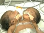 Conjoined twins born with one body and 2 heads