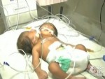 Conjoined twins born with one body and 2 heads in India