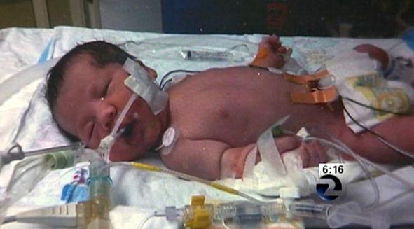Elijah Alvarez AFTER the surgery