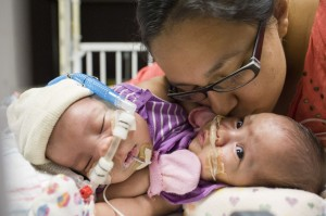 Elysse Mata with her conjoined twins Knatalye and Adeline