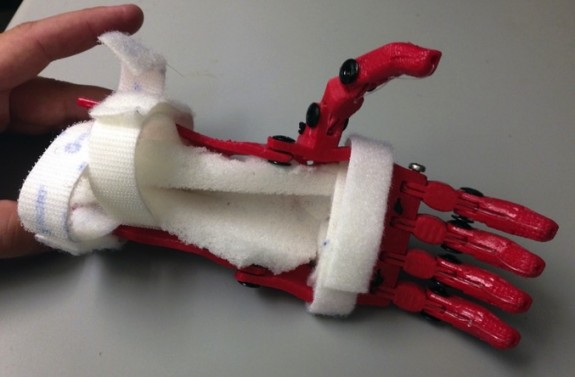 Holden Mora's 3d printed hand