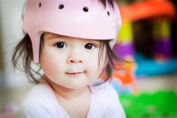 Infant orthotic helmet