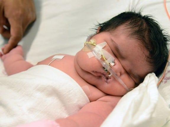 Photo: Children's Hospital Colorado