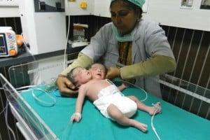 Rare dicephalic parapagus conjoined twins India