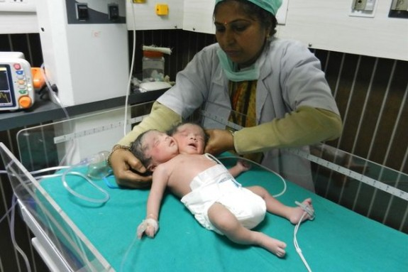 Rare dicephalic parapagus conjoined twins India