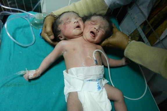 Rare dicephalic parapagus conjoined twins born India