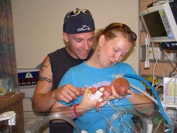 Shannon Amp Jeff With Their 24 Weeker Growing Your Baby