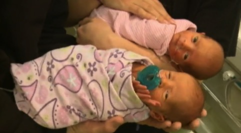 Surprise twins Anna and Ava