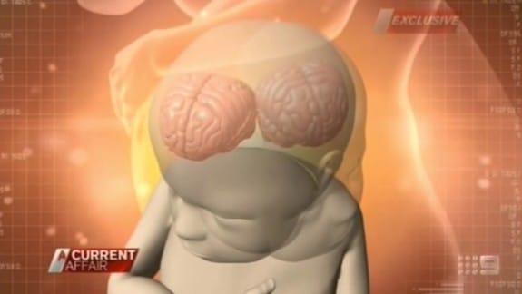 craniofacial hyperhidrosis