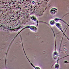 Study: Fertility Treatment Outcomes Determined by Sperm Quality, Not Donor Age