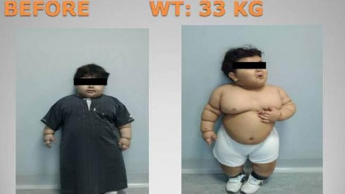 toddler bariatric surgery