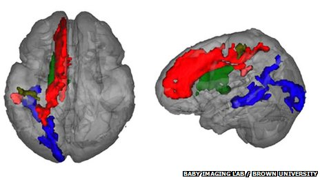 toddler brain scans